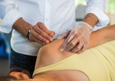 Dry Needling – Niveau 1