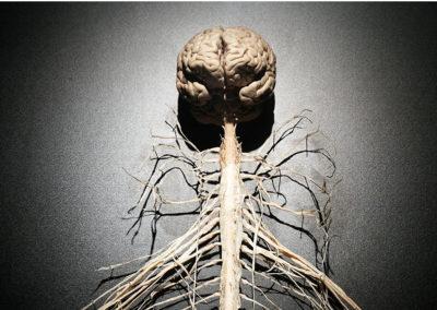 Neurodynamique et syndromes canalaires : clinique et mise à jour scientifique