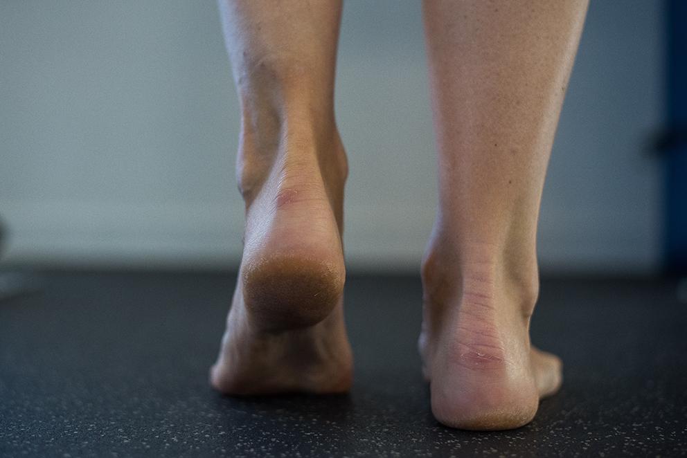 Gestion des tendinopathies des membres inférieurs